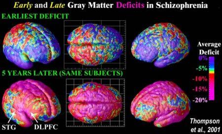 cervello-schizofrenia