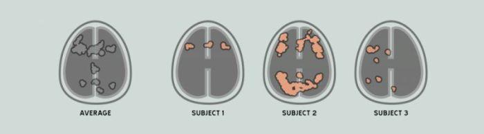 Creierul-mediu