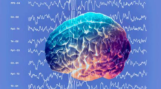 brain-during-epileptic-seizure