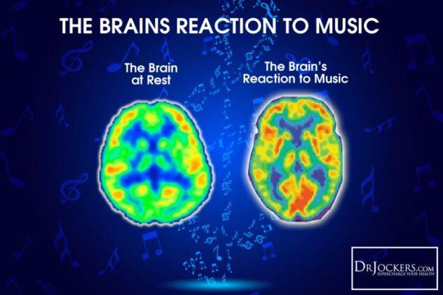 1-music-brain-2